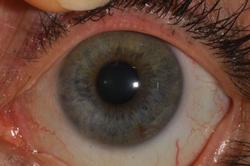 Lymphatic iris